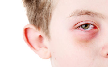 Natural Remedies For Children With Pink Eye