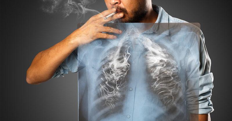 smoking lungs FI