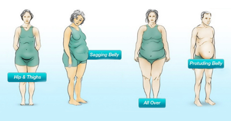 4 Types Of Weight Gain What They Say About Your Health David Avocado Wolfe