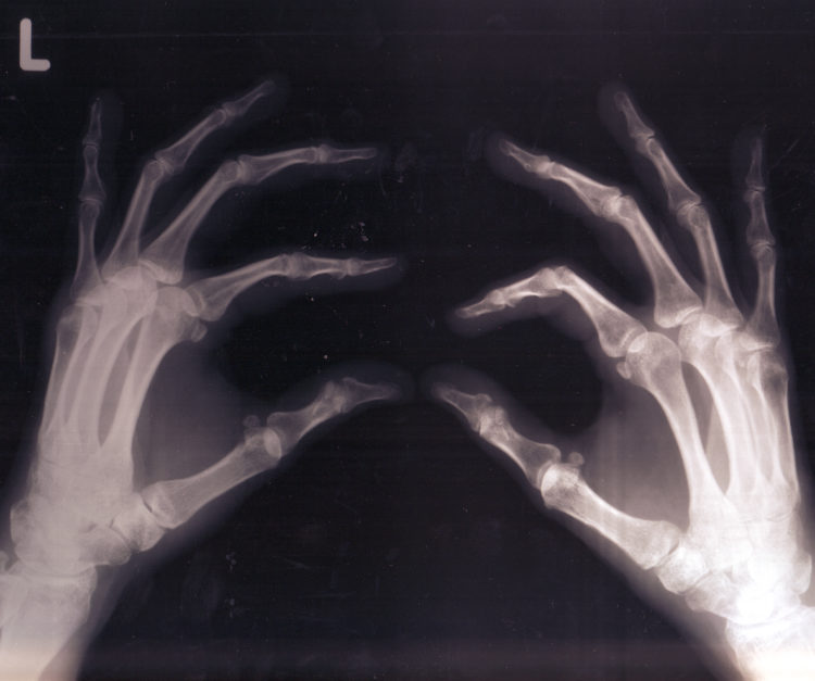 3021251711_d879d14cb3_o bones acidic
