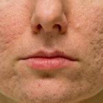 acne scars FI