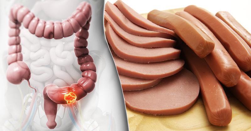 cancer foods FI