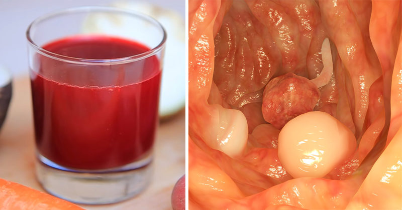 Breuss cancer cure recipe