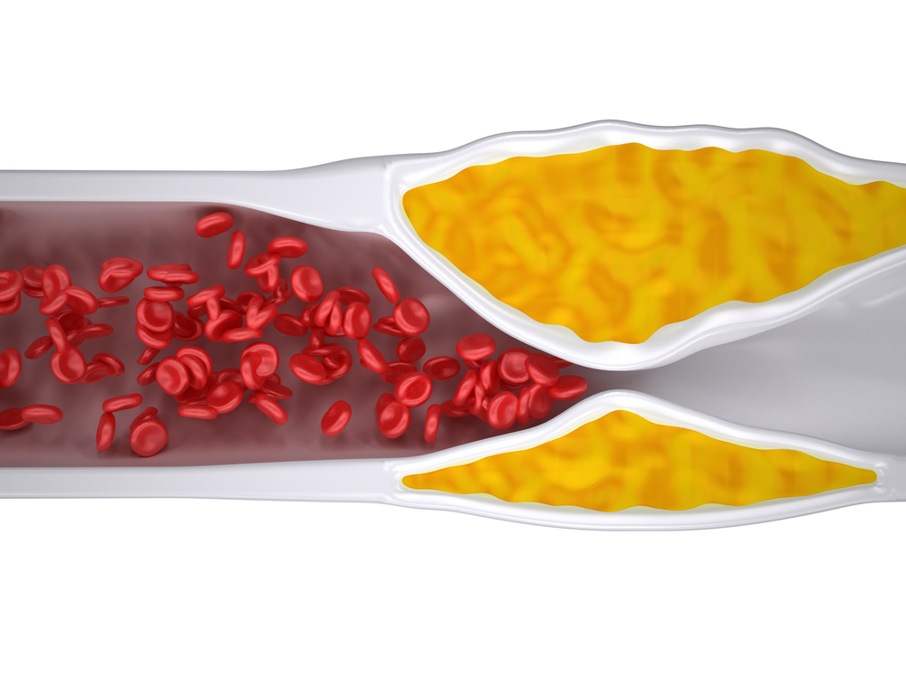 varicose veins enzyme serrapeptase