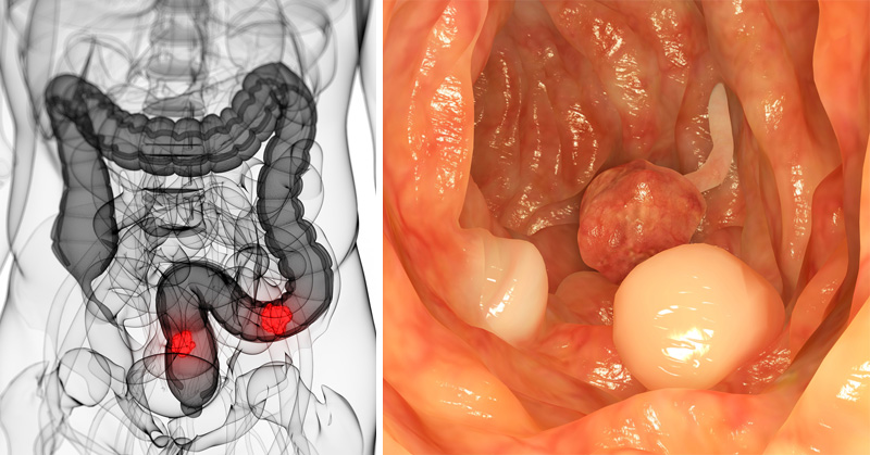 colon cancer risk FI