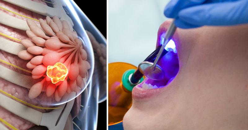 dental work cancer FI