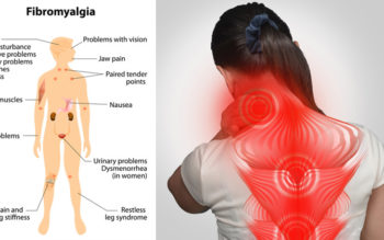 9 Natural Remedies for Fibromyalgia Pain Everyone Should Know