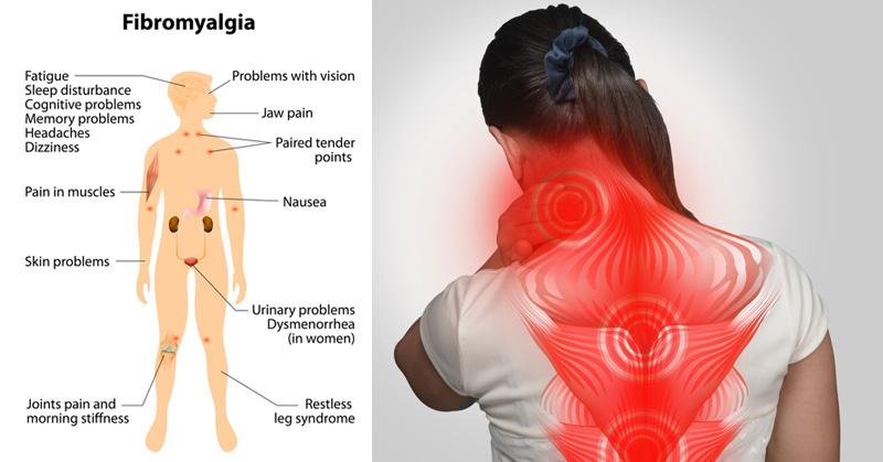 fibromyalgia, pain, relief