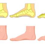 foot pain reasons FI02