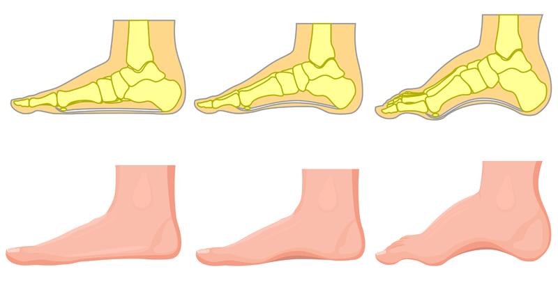 foot pain reasons FI02