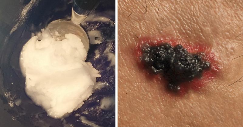 skin cancer baking soda FI