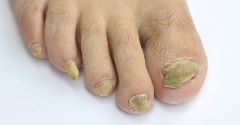 4 Natural Remedies That Cure Toenail Fungus FAST! - DavidWolfe.com