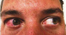 1160511-zika-dermatology-mn-1011_07a149f100f2a557001002cfe4ddd182.nbcnews-ux-2880-1000