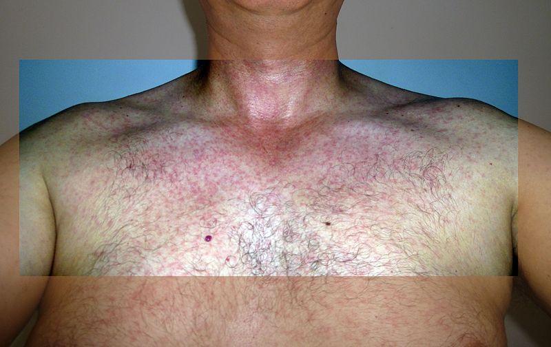 A Zika-induced rash.