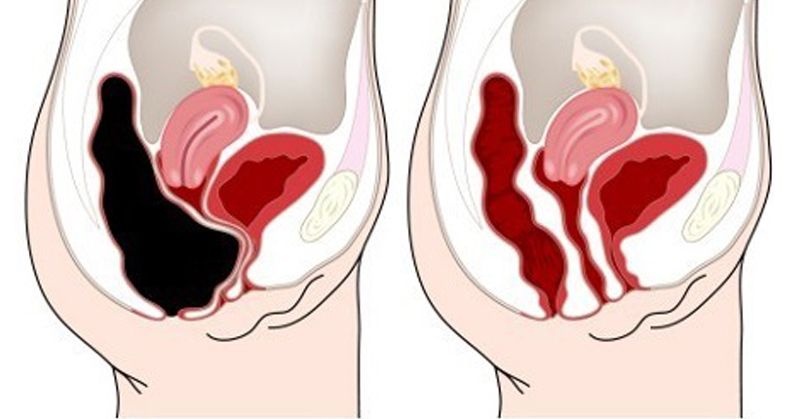 belly point constipation FI