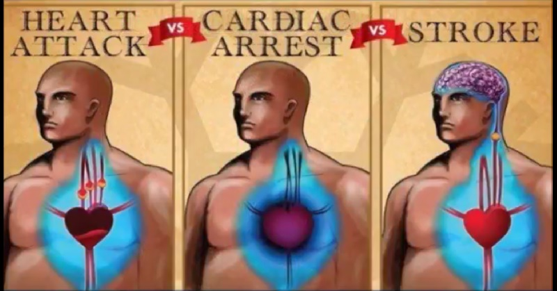what is cardiovascular arrest