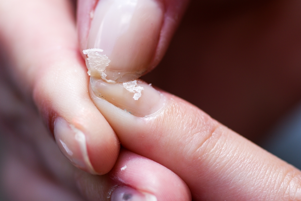 9 Things Your Nails Reveal About Your Health - DavidWolfe.com