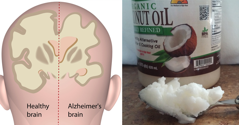 Researchers Confirm THIS Link Between Alzheimer's Disease and Coconut Oil!
