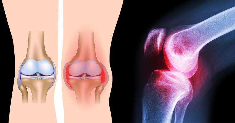 knee pain 3 steps FI