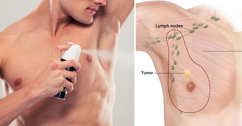 THIS Popular Deodorant Causes Cancer And Breast Growth In .