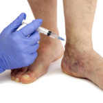 varicose-veins-remedies-fi