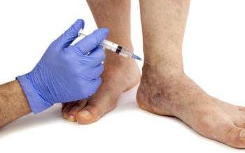 9 Remedies That Treat Varicose Veins Without Surgery!
