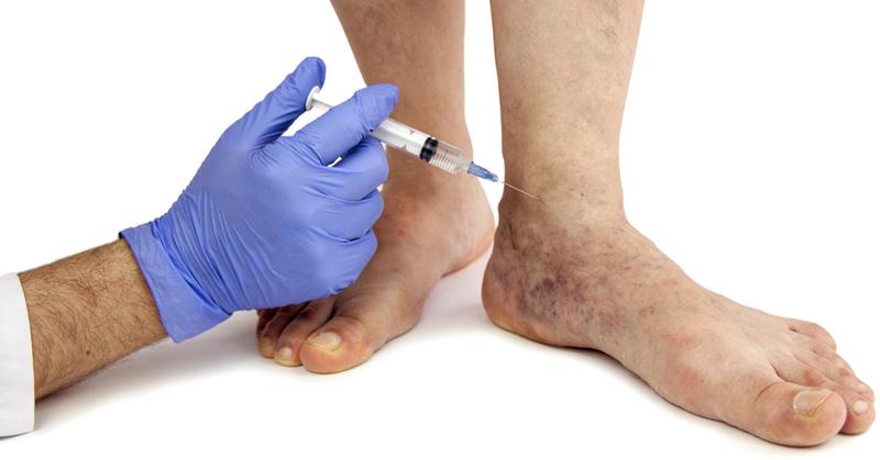 varicose-veins-remedies-fi