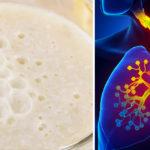bronchitis mixture FI