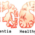 coffee dementia FI