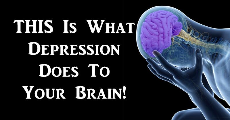 depression brain FI