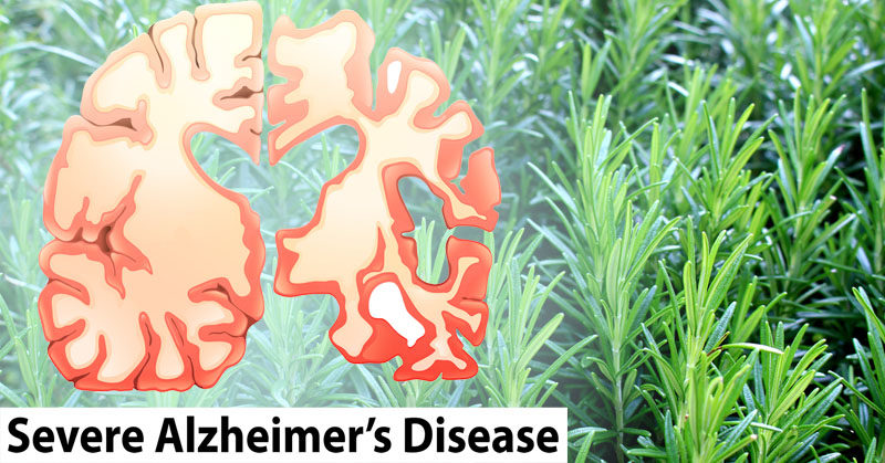 rosemary alzheimers FI