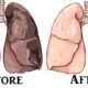 tartar nicotine FI