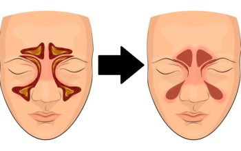 4 Simple Steps That Clear Sinuses FAST!