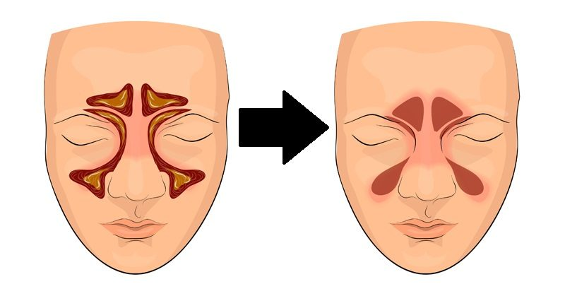 clear sinuses FI