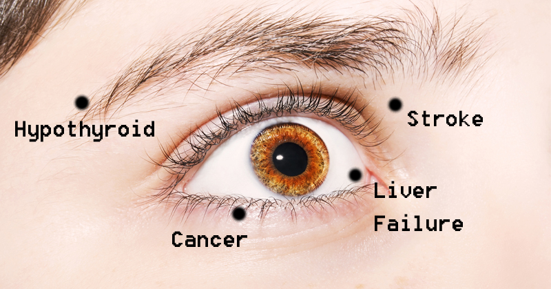 eye health FI