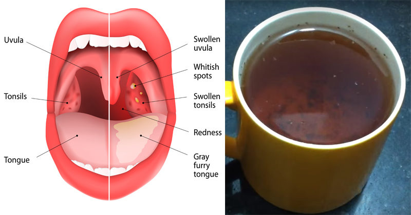 tea infections FI
