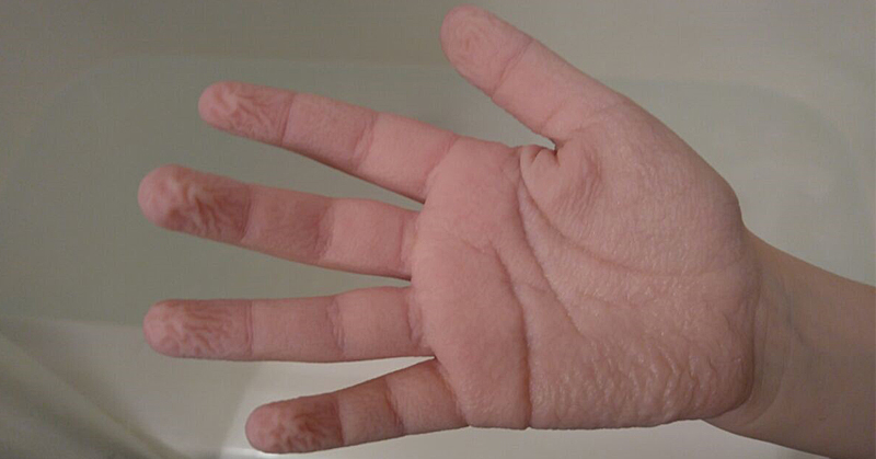 wrinkle hands FI