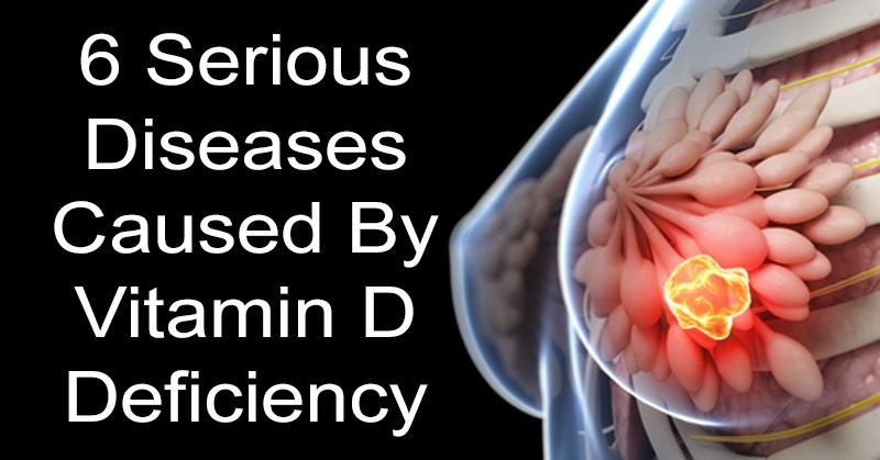 diseases vitamin d FI02