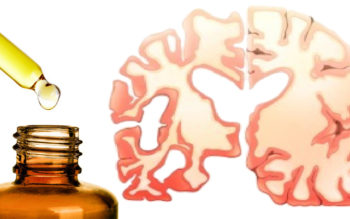 Study States This Essential Oil Reduces Dementia Symptoms