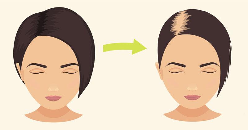 medication hair loss FI