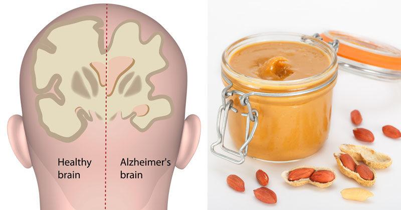 peanut butter alzheimers FI