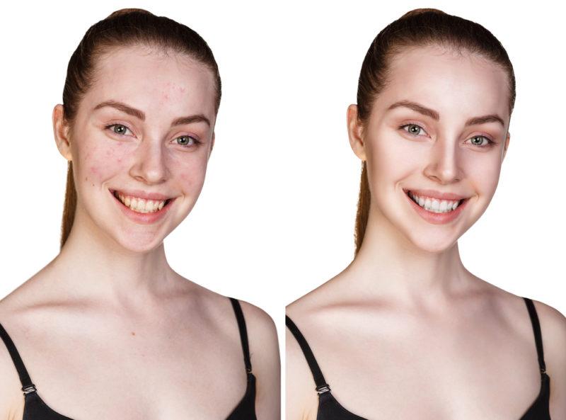 problem skin before after