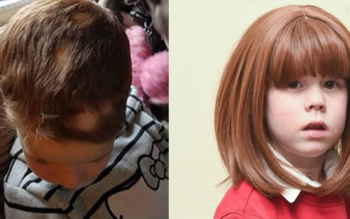 Mother FURIOUS After Teachers Force Her Daughter With Alopecia To Remove Wig In Class