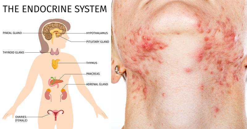 foods destroy hormones skin FI