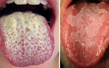 White Tongue Natural Treatment: Causes & How To Get Rid Of it