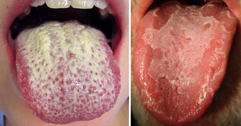 white tongue FI