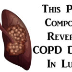 COPD damage FI