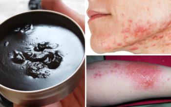 Rub This Black Salve On Your Skin To Cure Warts, Poison Ivy & Acne!