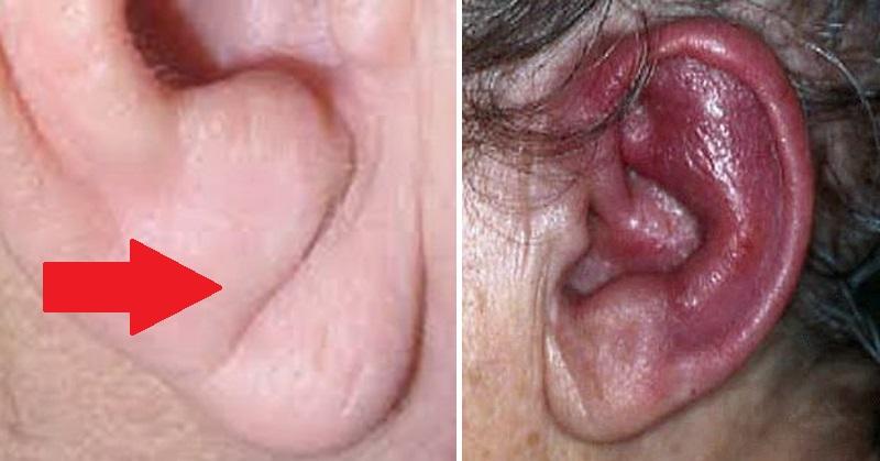 ear health FI