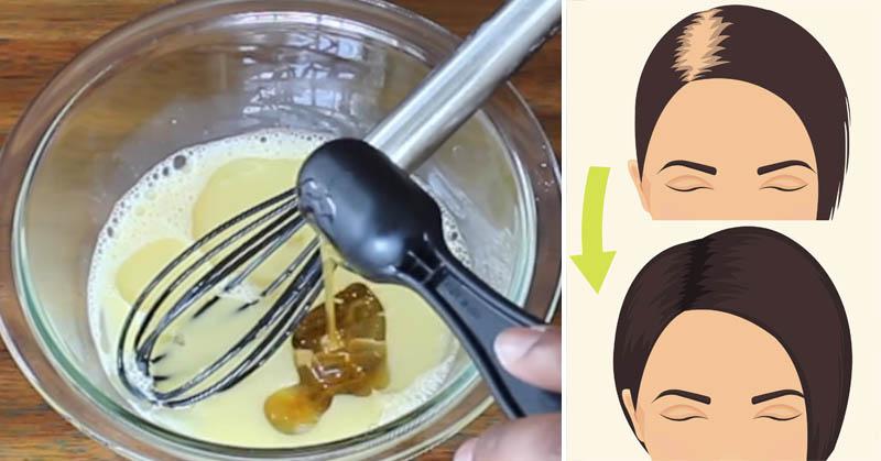 hair growth mixture FI